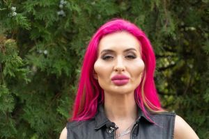 Anastasia Pokreshchuk has spent over Sh217K ($2000) on cheek fillers since having her first one four years ago at age 26 and she said she has no plans to stop.