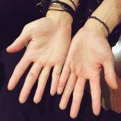 Hiroki's injured hands T_T