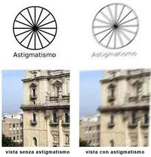 astigmatismo I