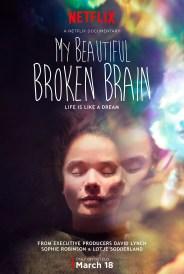 MY BEAUTIFUL BROKEN BRAIN (2014) – DIR. SOPHIE ROBINSON Y LOTJE SODDERLAND (INGLATERRA) – DOCUMENTAL https://unpastiche.org/category/52peliculasdedirectoras/