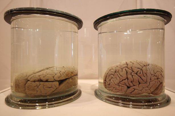 Man Selling Human Brains On eBay