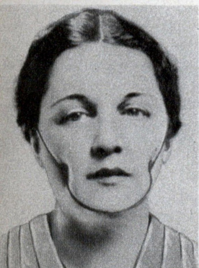 Device creating the dimples on cheeks, used in the night. First produced in 1936.