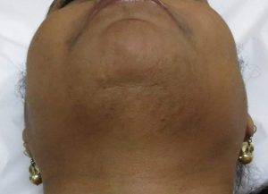 Chin After Electrolysis Treatment