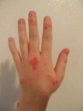 Left hand 5 months 22 days