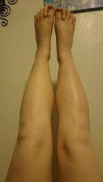 both legs 1-22-16 15 months