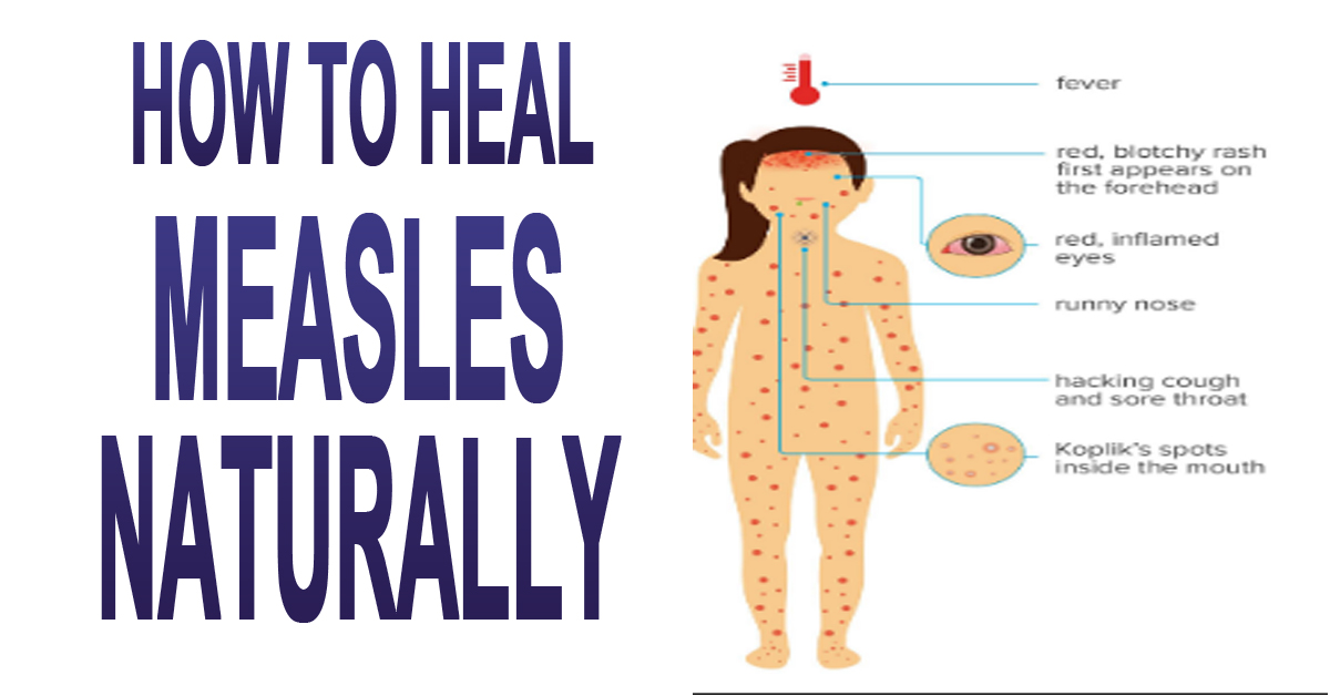 How To Naturally Heal Measles
