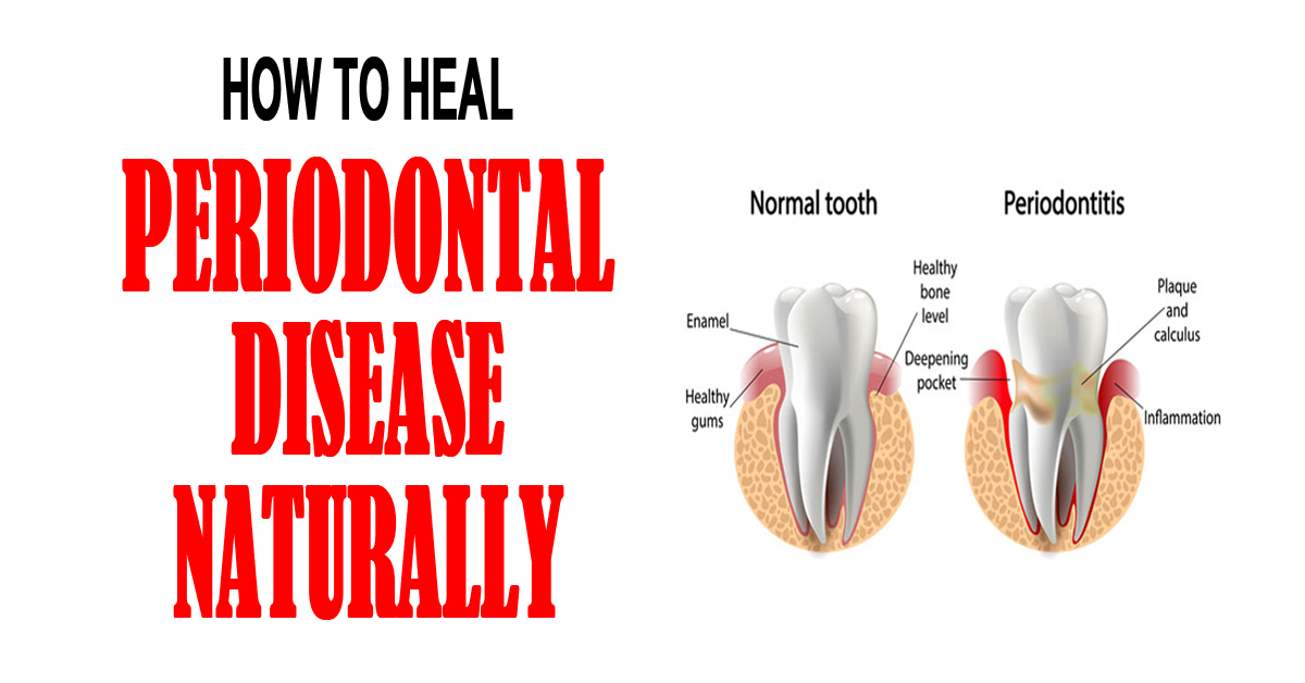 How to Heal Periodontal Disease Naturally