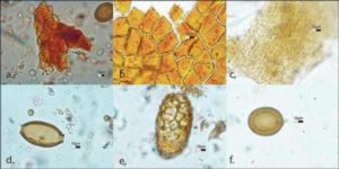 Tollund人的肠道内容包括:a)大麦花粉,b)亚麻细胞,c)大麦细胞,d)鞭虫卵,e)毛虫卵和f)绦虫卵。(R. Enevold - Moesgaard博物馆/Antiquity Publications Ltd )