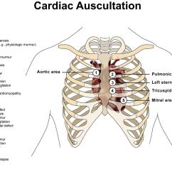 Heart Sounds Diagram Wire Ford Starter Solenoid Relay Switch Murmurs Cardiovascular Medbullets Step 1