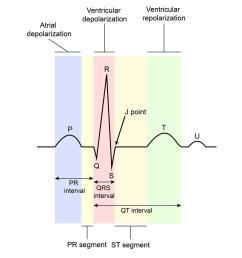 electrocardiogram ecg cardiovascular medbullets step 1electrocardiogram diagram 13 [ 1181 x 1500 Pixel ]