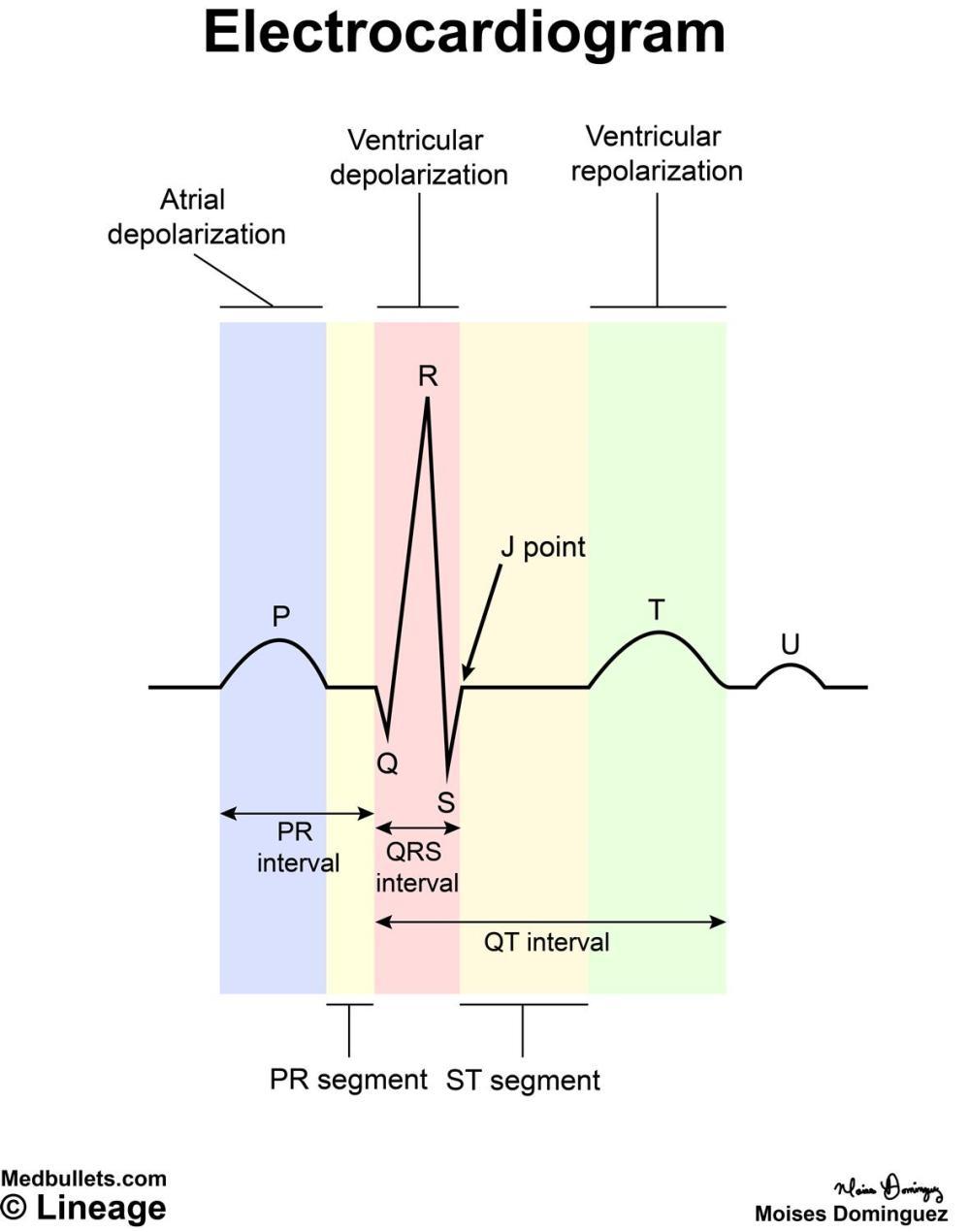 medium resolution of electrocardiogram ecg cardiovascular medbullets step 1electrocardiogram diagram 13