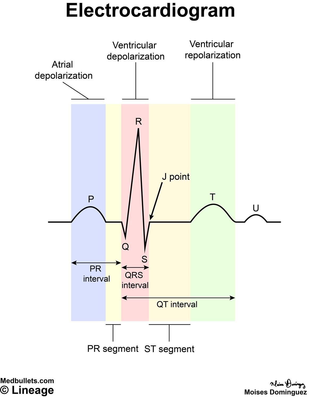 hight resolution of electrocardiogram ecg cardiovascular medbullets step 1electrocardiogram diagram 13