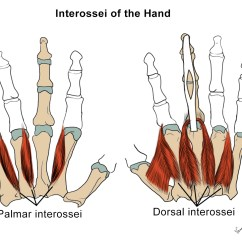 Palmar Hand Muscle Anatomy Diagram 3 Switch Wiring Intrinsic Muscles Msk Medbullets Step 1
