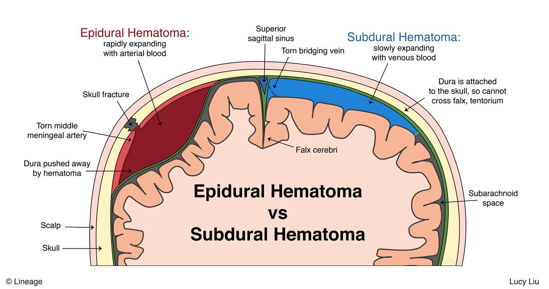 Intracranial Hemorrhage Neurology Medbullets Step 1