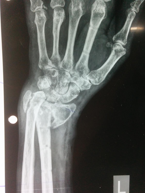 Distal Radius Fractures - Trauma - Orthobullets
