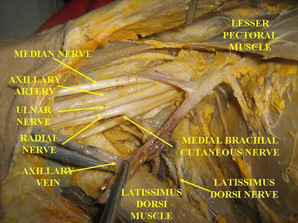 Human Head And Neck Muscles Diagram Brachial Plexus Injuries Trauma Orthobullets