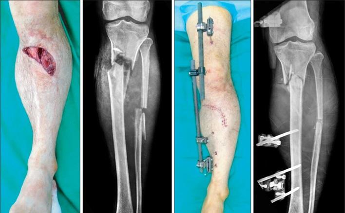 Treatment Fracture Tib Fib