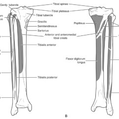 Diagram Of Tibia Stress Fracture 4 Channel Car Amp Wiring Proximal Third Trauma Orthobullets