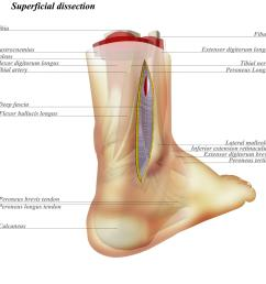 superficial dissection is made down to deep fascia the fibula can be accessed anteriorly to [ 2000 x 2000 Pixel ]