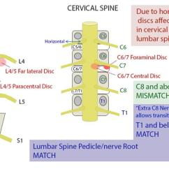 Lumbar Nerve Root Diagram 1998 Ford Taurus Engine Cervical Radiculopathy Spine Orthobullets