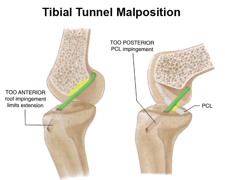 ACL Tear  Knee  Sports  Orthobullets