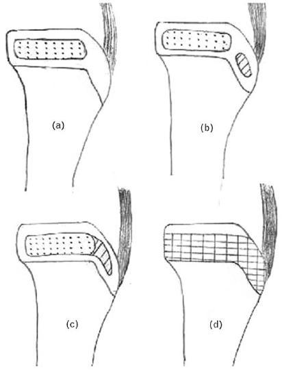 Osgood Schlatter's Disease (Tibial Tubercle Apophysitis