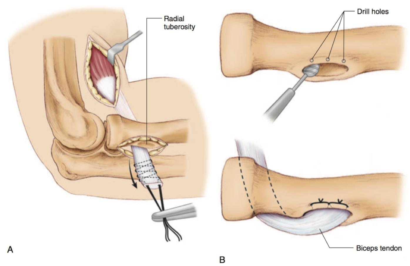 hight resolution of dual incision technique