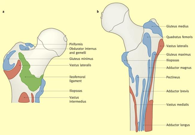 diagram of tibia stress fracture monster hunter 3 quests femoral neck fractures knee sports orthobullets