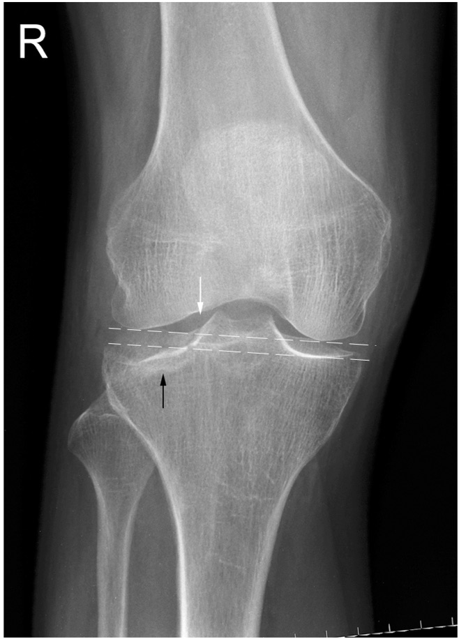 Tibial Plateau Fractures - Trauma - Orthobullets