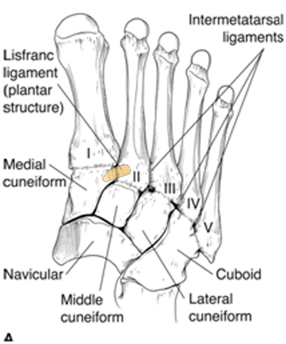 Lisfranc Injury (Tarsometatarsal fracture-dislocation