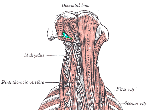 In Aqua is the location of the Suboccipital Triangle