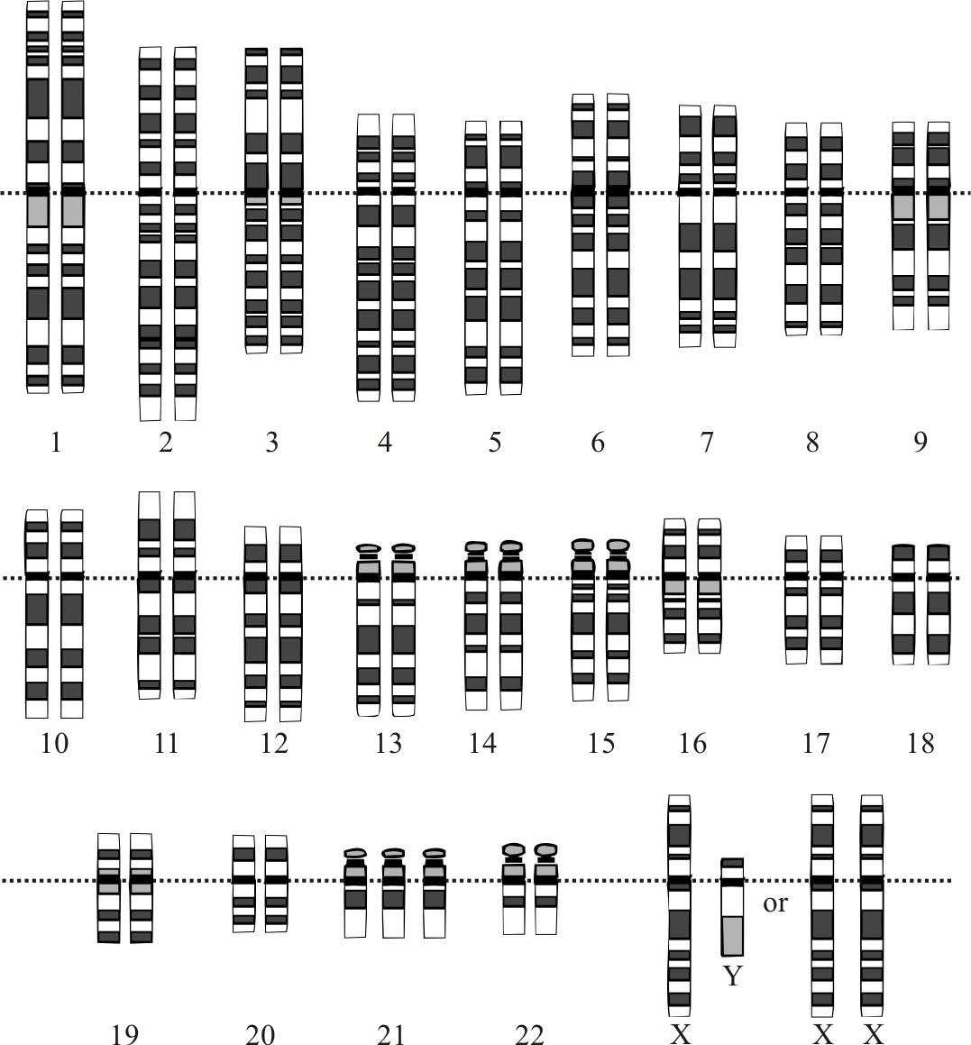 File Down Syndrome Karyotype