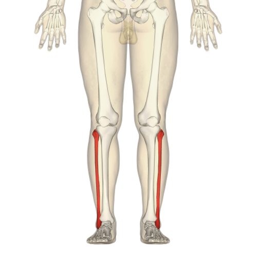 small resolution of split femur diagram