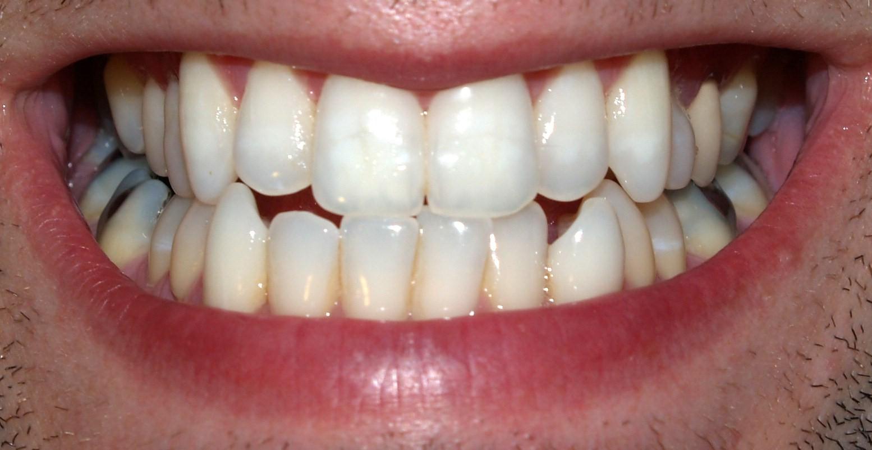 permanent teeth wikipedia