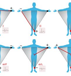 12 lead ekg limb diagram [ 1500 x 1000 Pixel ]