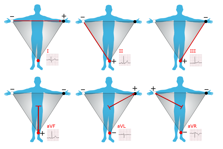 hight resolution of 12 lead ekg limb diagram