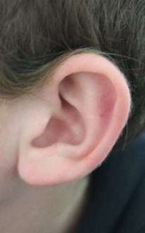 Myths of ear health theaudiblehomosapien.in