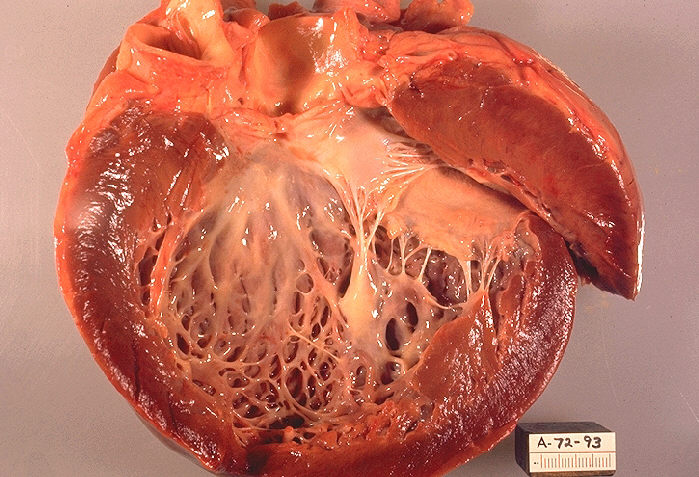 File:Idiopathic cardiomyopathy, gross pathology 20G0018 lores.jpg