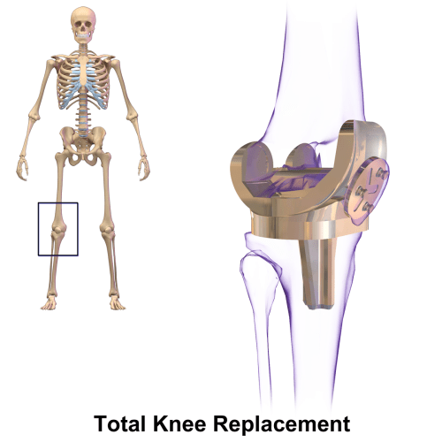 small resolution of knee part diagram