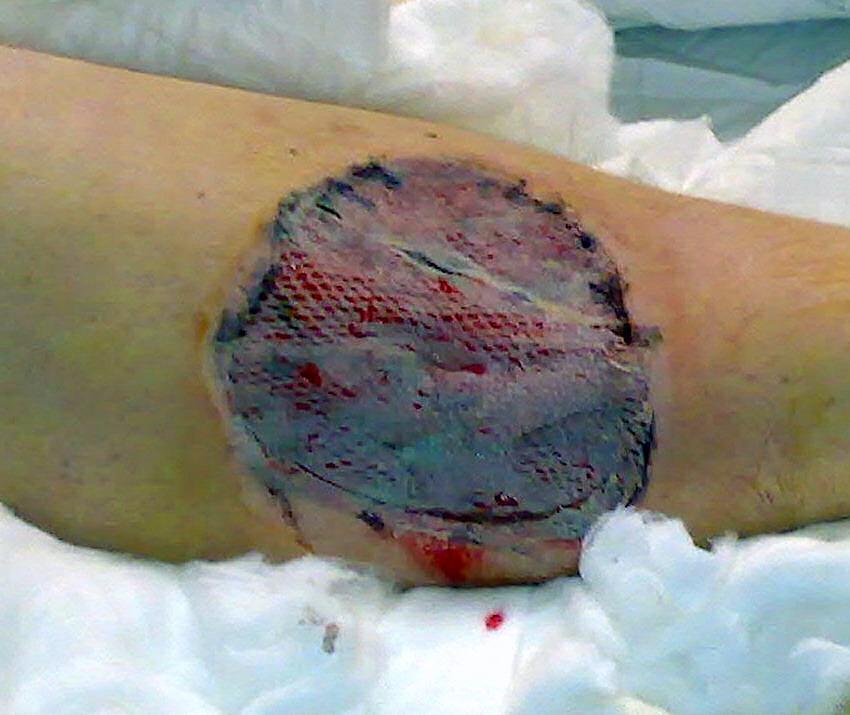Skin grafting  Wikipedia