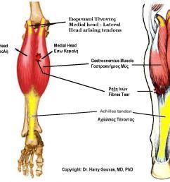 file gastrocnemius muscle jpg [ 1273 x 1029 Pixel ]