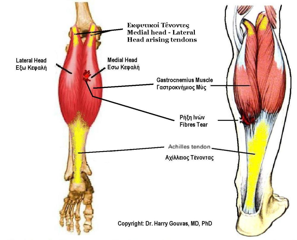 medium resolution of file gastrocnemius muscle jpg