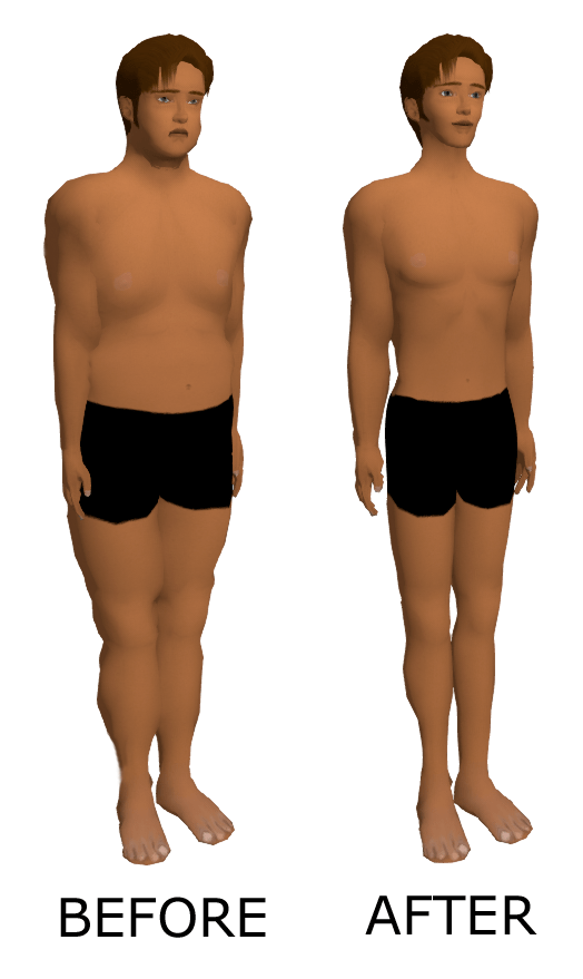 Face Weight Loss Before And After : weight, before, after, Weight, Wikipedia
