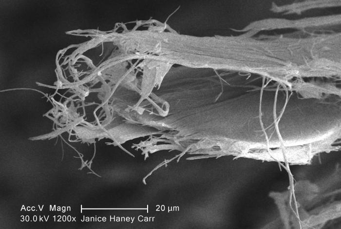 Asbestos Disease Wiki | Mesothelioma Law Firm