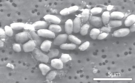 File:GFAJ-1 (grown on arsenic).jpg