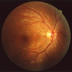 Diagram Of The Left Eye Phone Connection Wiring Australia Fundus Wikipedia