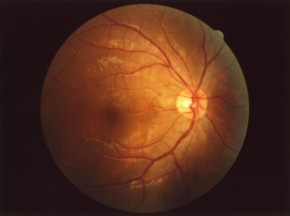 The inside of your eye as photographed by an optician. (c) Wikimedia Commons. I had the images of my eyes on a flash drive but have misplaced it so you will have to wait till I find it.