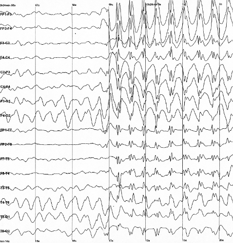 EEG image (Wikipedia commons)
