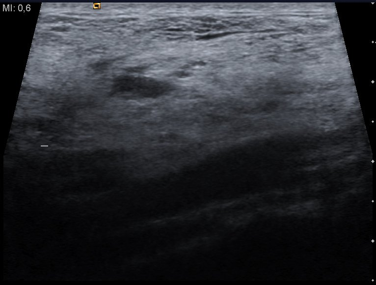 CategoryUltrasound images of Cystic Hygroma  Wikimedia