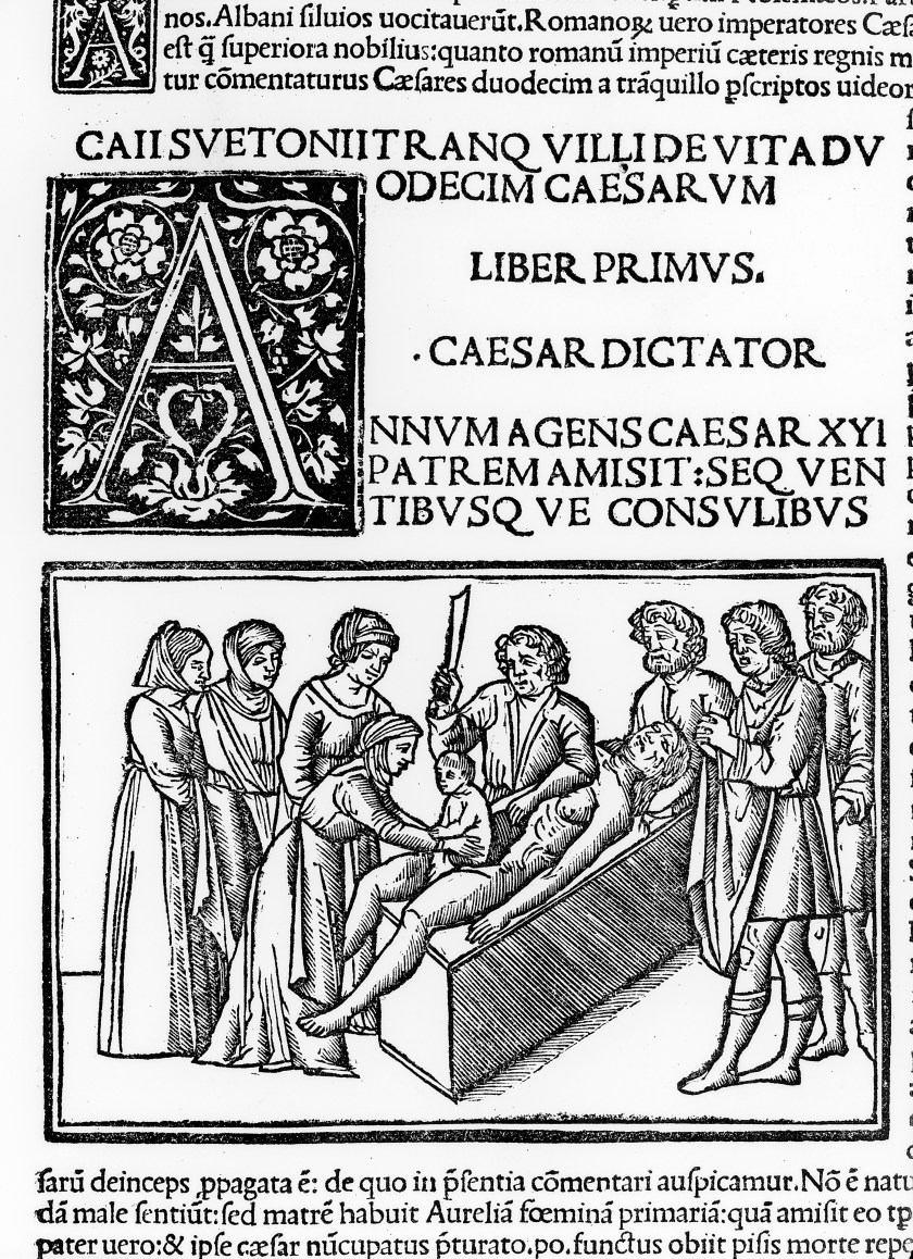 No, Julius Caesar Was Not Born by Cesarean Section - Tales